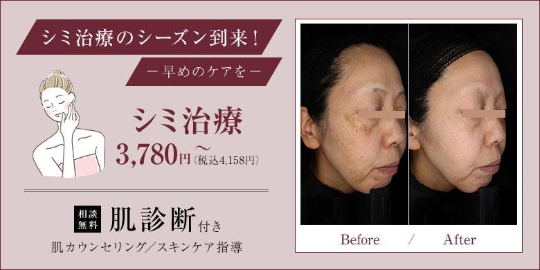姫路メディカルクリニック シミ治療