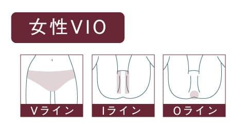 VIO医療脱毛の女性イラスト