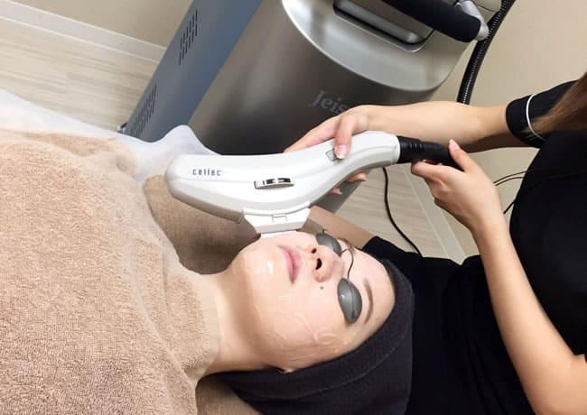 姫路メディカルクリニックで使用する光治療機器「Cellec(セレック)」を使用しシミ・くすみ治療を行っている様子