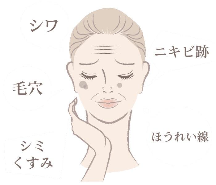 シミ治療人気No.1!カスタマイズ治療♡